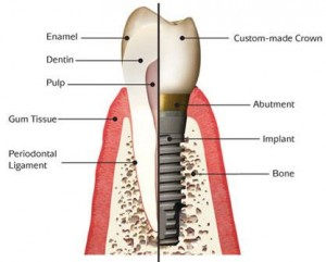 berkeley-ca-dental-implants-home-graphic