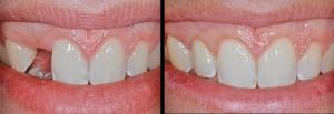 dental-implants-nautal-look