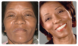 A sense of self confidence with dental implants