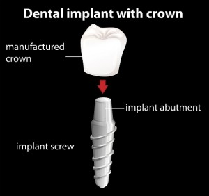 Our Berkeley, CA area patients know that each piece of a dental implant works together to form an effective restoration.