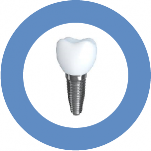Our Berkeley, CA area patients know that diabetes may not lower their chances of getting treatment with dental implants.